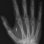 Março de 2013- Obama aprova lei que determina implantação de chips em humanos.