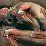 9 práticas para diminuir dores crônicas