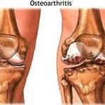 Acupuntura é alternativa para cirurgia de artrose no joelho