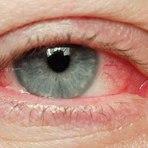 Saúde - Hemorragia subconjuntival, mancha de sangue no olho