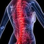 Saúde - Causas de dor nas costas.