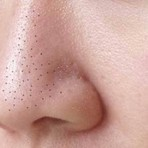 Moda & Beleza - Utilize cola escolar para remover os cravos do nariz – Repostado