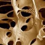 Saúde - Osteoporose na menopausa