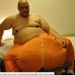 Saúde - Homem passa por cirurgia para reduzir testículos que pesam 63 kg