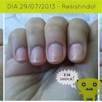 Moda & Beleza - Roer as unhas é sinônimo de ansiedade!