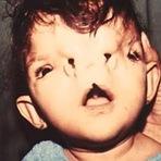 Mistérios - Crianças deformadas por radiaçâo-imagens fortes !!